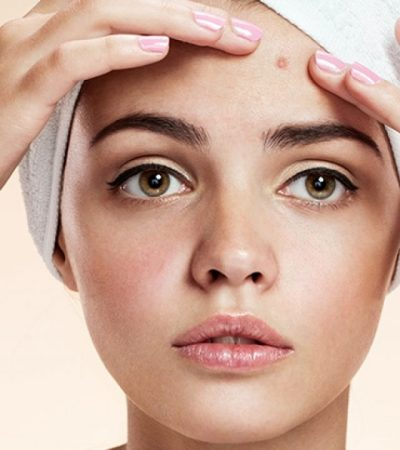 7 natural remedies to get rid of from acne